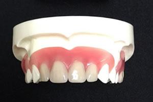 入れ歯を使うことをお勧めする理由